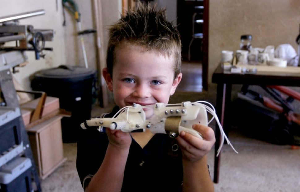 Liam showing his 3D printed hand